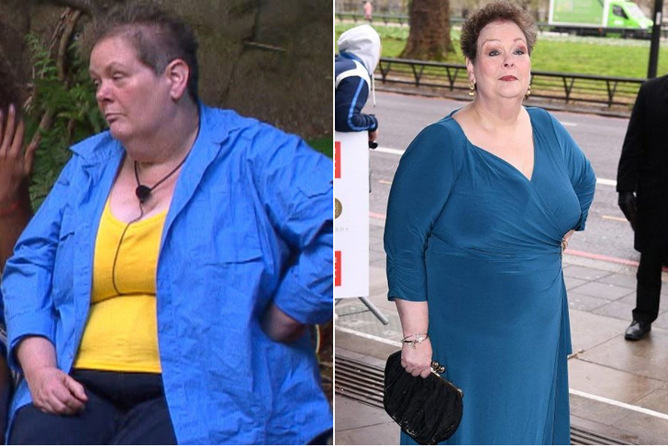 Anne Hegerty – La Participante De I'm A Celebrity… Get Me Out Of Here A Perdu 6 Kilos